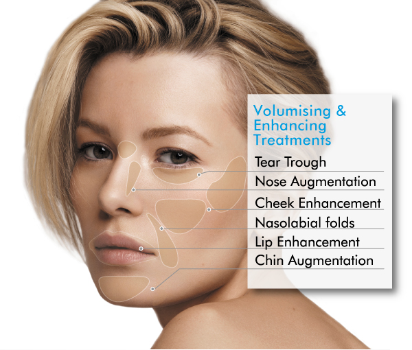 dermal filler cheeks - The Skin Project Cosmetics Clinics by